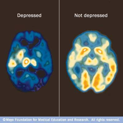 Your brain on and off depression